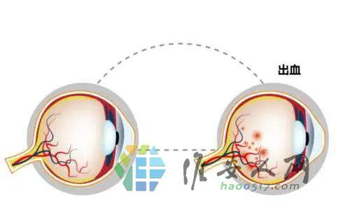 保护视力=保护我们的梦想6.jpg