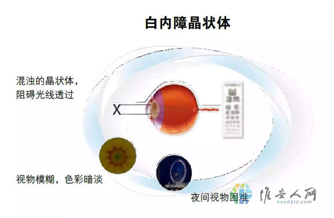 保护视力=保护我们的梦想9.jpg
